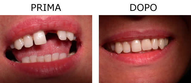 Implantologia su singolo dente